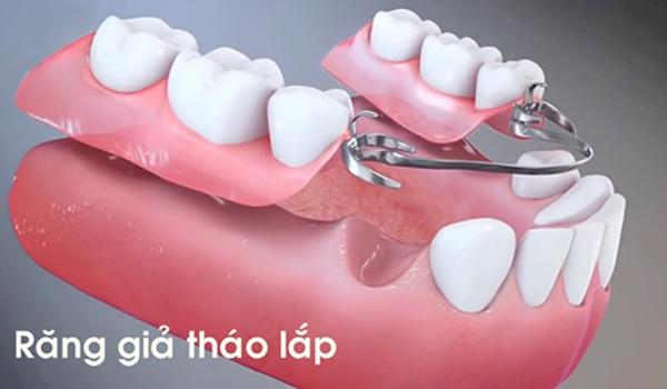 trồng răng hàm số 7 bằng hàm giả tháo lắp