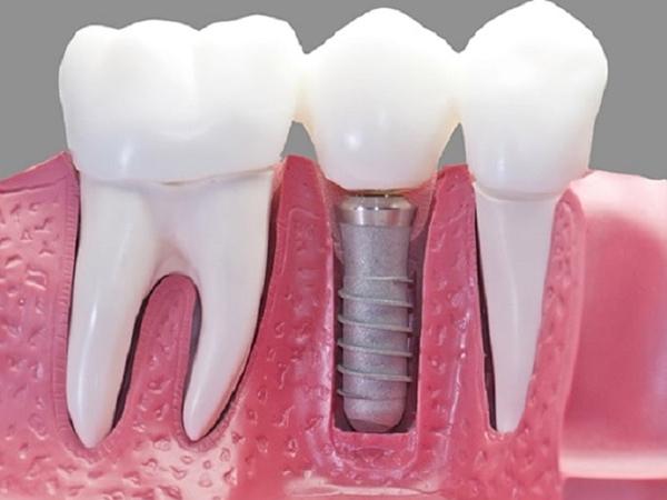 Trồng răng hàm số 7 hết bao nhiêu tiền?