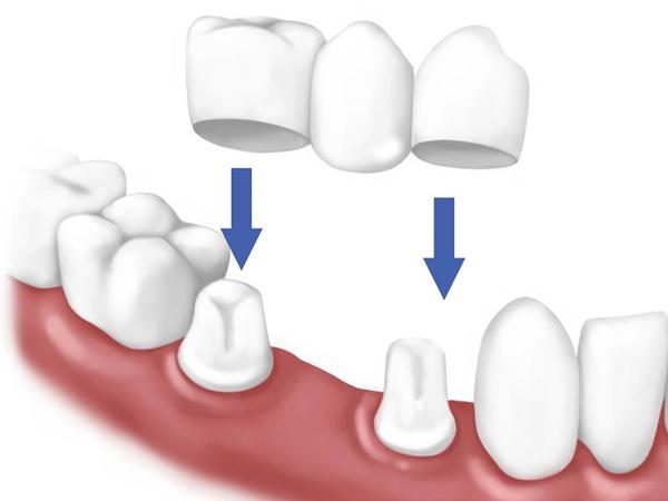 Trồng răng khểnh bằng cầu răng sứ bao nhiêu tiền?