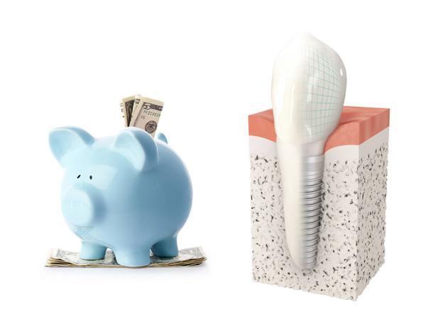 Trồng răng khểnh bằng cấy ghép Implant bao nhiêu tiền?