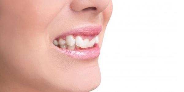 Trồng răng khểnh bằng Composite bao nhiêu tiền?