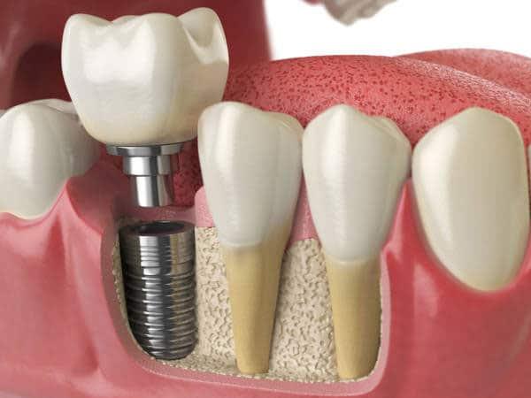 trồng răng hàm số 7 bằng Implant