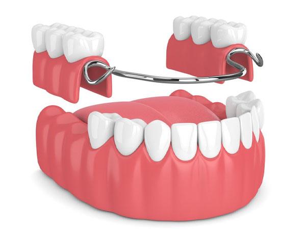 Ưu điểm của răng sứ tháo lắp