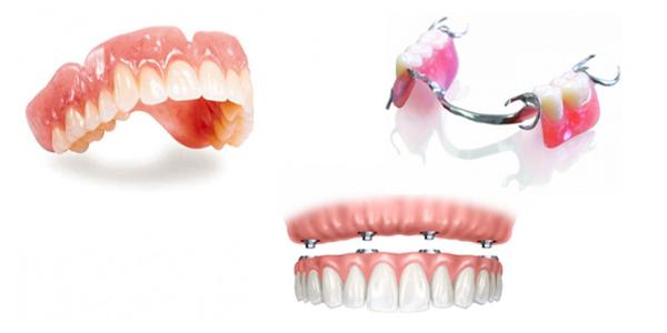 Giá trồng răng giả tháo lắp được tính dựa trên những yếu tố nào?