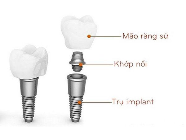 rồng răng Implant (cấy ghép implant)