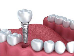 Công nghệ cấy ghép trồng răng Implant là gì?