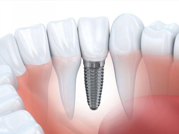 Quá trình trồng răng Implant có đau không?