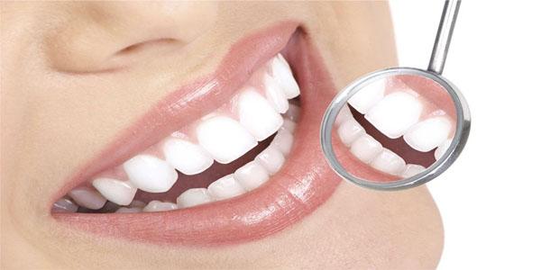 Bảng giá trồng răng cửa chi phí hết bao nhiêu tiền?
