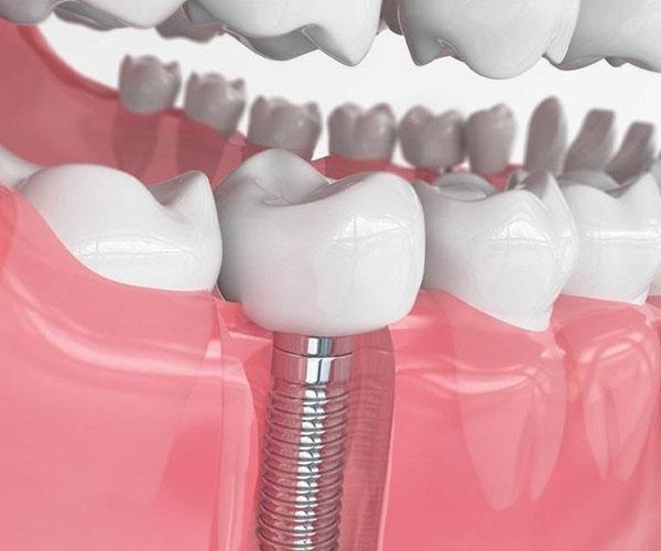 Bảng giá trồng răng nhai chi phí hết bao nhiêu tiền?