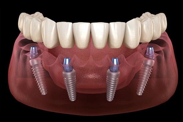 Những ai nên trồng răng implant?