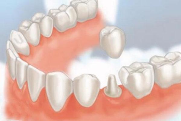 Chi phí trồng răng hàm trên dưới giá bao nhiêu tiền?