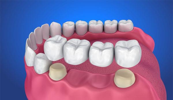 Có nên trồng răng hàm trên dưới không? Và có đau không?