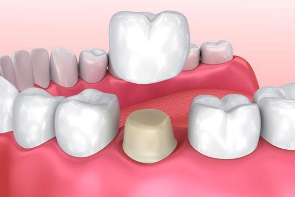 Bác sĩ sẽ kiểm tra, so sánh và tiến hành gắn răng sứ cố định