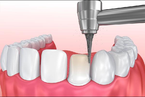 Tiến hành gây tê vùng điều trị và mài cùi răng