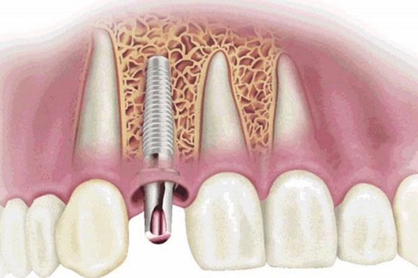 Phòng chống tình trạng răng Implant bị lung lay bằng cách chú ý vệ sinh răng miệng cẩn thận