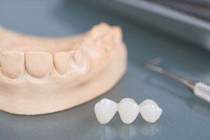 Phương pháp trồng răng sứ có đau không?