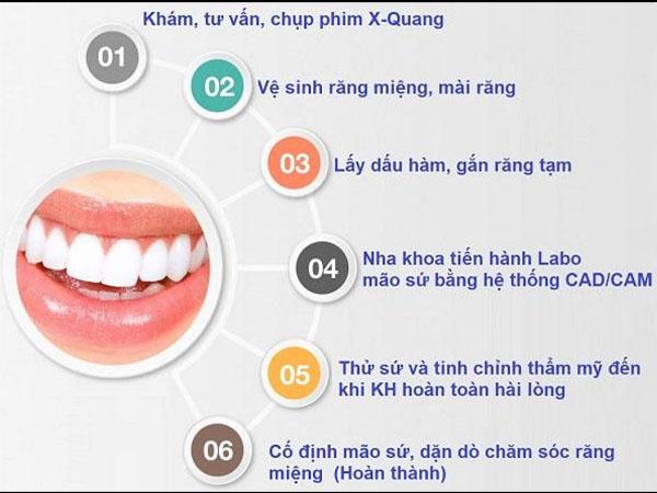 Quy trình trồng răng sứ Titan