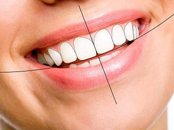 Cách trồng răng cửa và mất bao lâu?