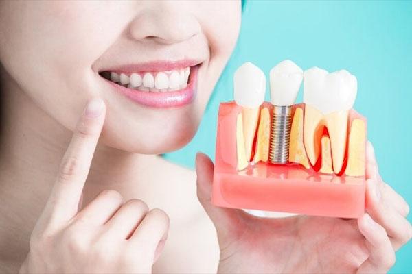 Răng Implant bị lung lay xử lý làm sao cho DỨT ĐIỂM vĩnh viễn?