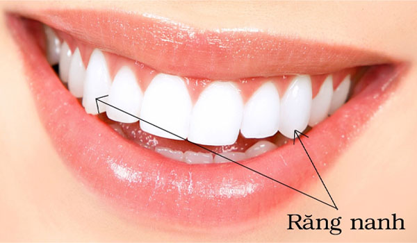 Răng nanh là gì?