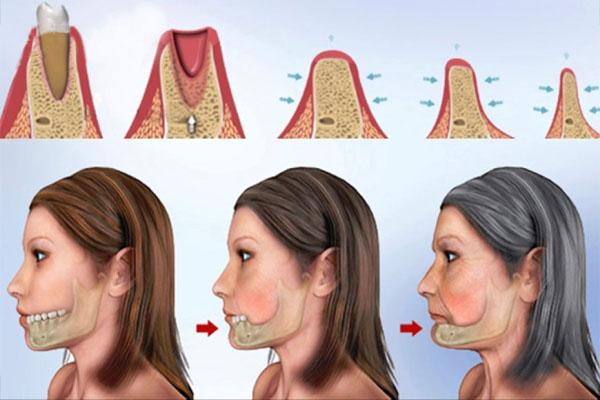 Hậu quả mất răng nhai