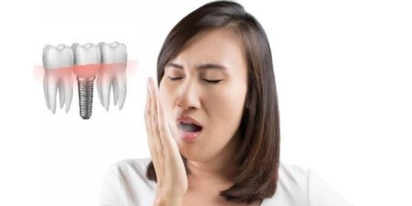 Trồng răng Implant có bị hôi miệng không?