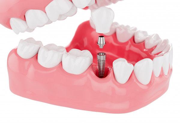 Trồng Răng Implant Có Tốt Không?