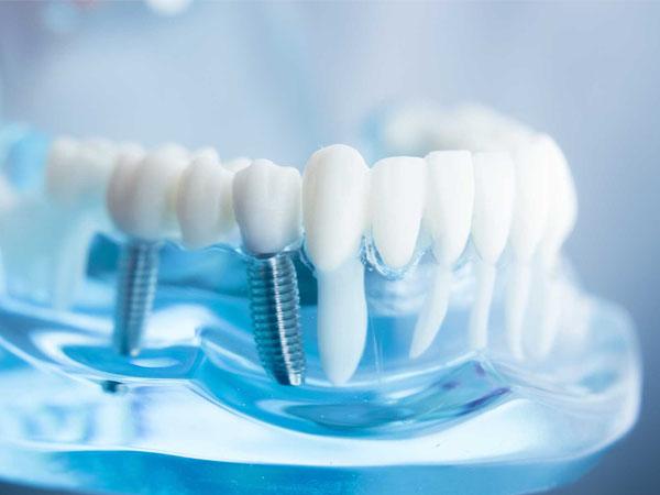 Trồng răng Implant giá rẻ TRỌN GÓI, bảo hành vĩnh viễn
