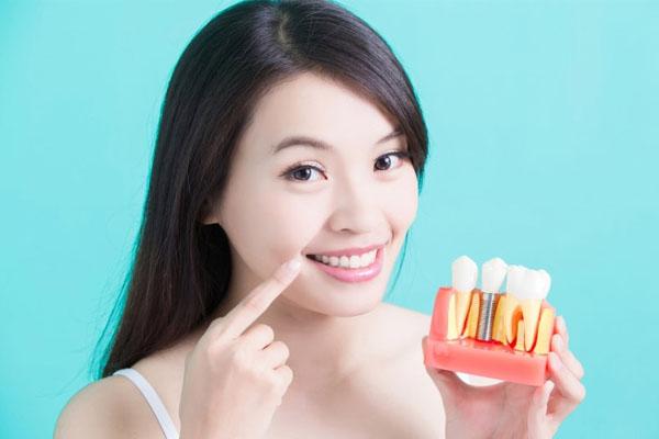 Trồng răng Implant giá rẻ TRỌN GÓI
