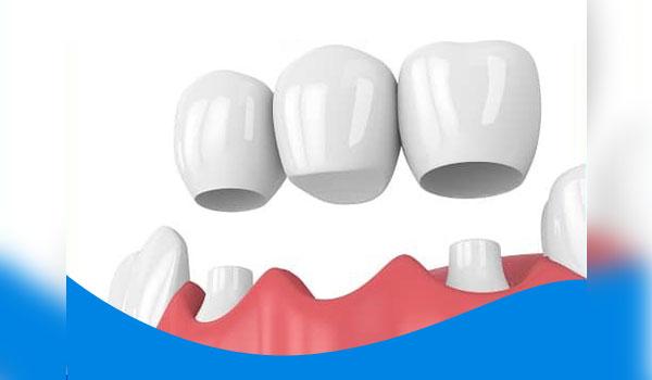 Trồng răng nanh bằng cầu răng sứ