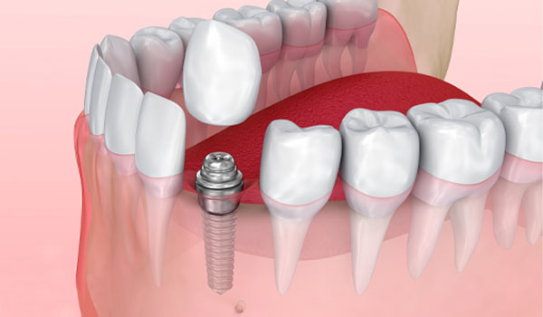 Trồng răng nanh bằng trụ Implant giá bao nhiêu?