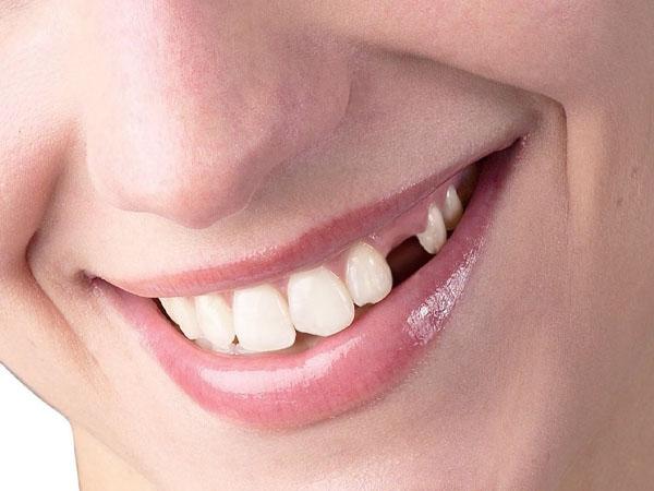 Trồng răng nanh hết bao nhiêu tiền?