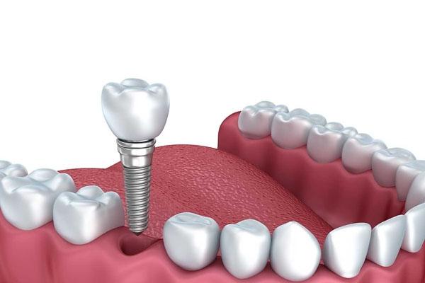 Trồng răng nhai bằng cấy ghép Implant