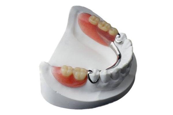 Trồng răng nhai bằng răng tháo lắp