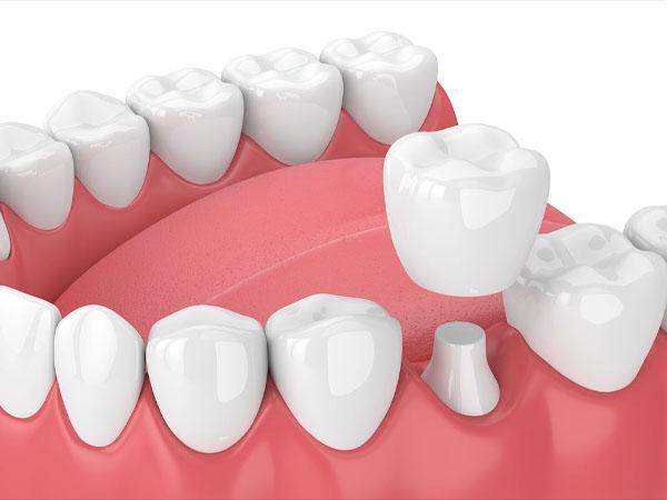 Trồng răng sứ là như thế nào?