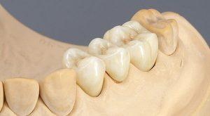 Trồng răng sứ Titan có tốt không? Giá bao nhiêu?